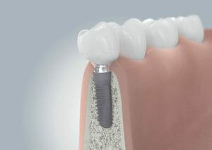 0401 01 Zahnimplantate