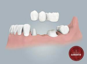 0406 02 einen fehlenden zahn brucke