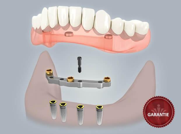 0409 zahnlosen kiefer stegprothese 1