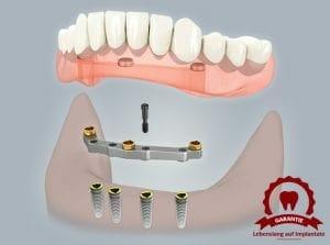 0409 zahnlosen kiefer stegprothese